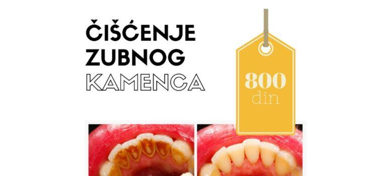 nt dental sajkas ciscenje zubnog kamenca poliranje